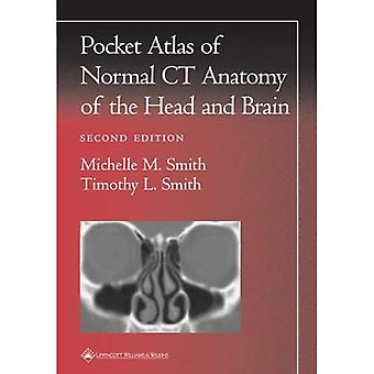A Pocket Atlas of Normal CT Anatomy of the Head and Brain (Radiology Pocket Atlas)