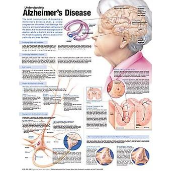 Understanding Alzheimers Disease Anatomi by Anatomical Chart Company