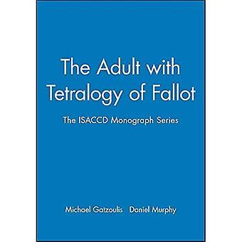 Die Erwachsenen mit Tetralogie von Fallot (Amg All Music Guide Serie)