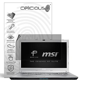 Celicious Privacy Plus 4-Way Anti-Spy Filter Screen Protector Film Compatible with MSI Prestige PE72 8RD