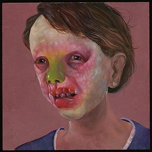 Controlled Bleeding - Larva Lumps &   Bumps [Vinyl] USA import