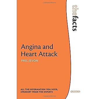 Angina pectoris en hartinfarct (de feiten)