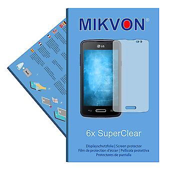 LG L50 Sporty screen protector- Mikvon films SuperClear