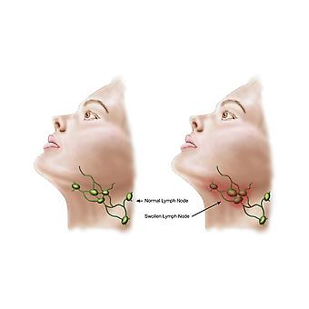 Anatomy of swollen lymph nodes Poster Print