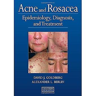 Akne, Rosacea und andere Gesichts Dermatosen