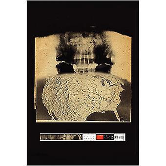راديوهيد--طباعة ملصق فاقد الذاكرة (24 × 36)