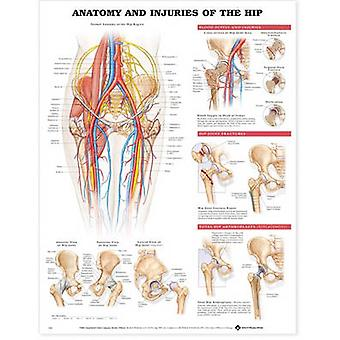 Anatomy and Injuries of the Hip Anatomical Chart by Anatomical Chart Company