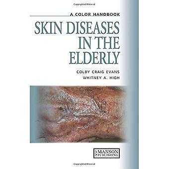 Malattie della pelle negli anziani