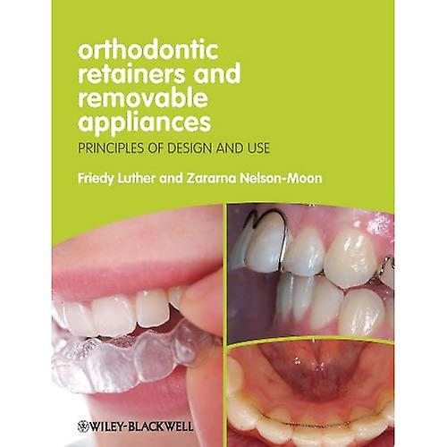 Orthodontic Retainers and Removable Appliances
